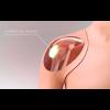 Hombro para inyección guiada por ultrasonido